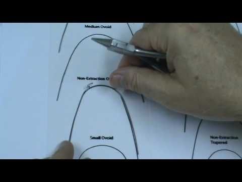 Lower Small Ovoid (from lower med ovoid)