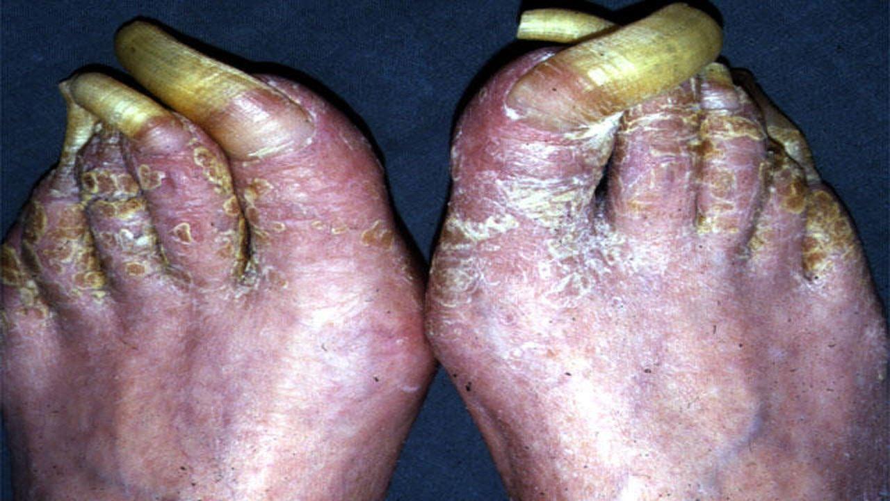 world record longest toenails » 4K Pictures | 4K Pictures [Full HQ ...