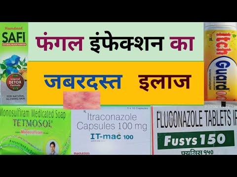 Fungle infection ka treatment in hindi//फंगल इंफेक्शन का जबरदस्त इलाज//