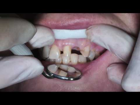 Dental Video: Dd21-23 Bridge Preparation