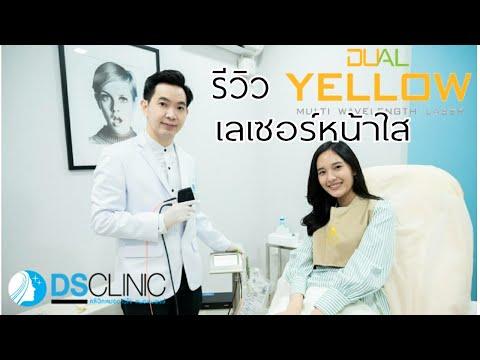 รีวิว Dual Yellow Laser เลเซอร์หน้าใสที่ DSclinic อุดรธานีสกลนคร
