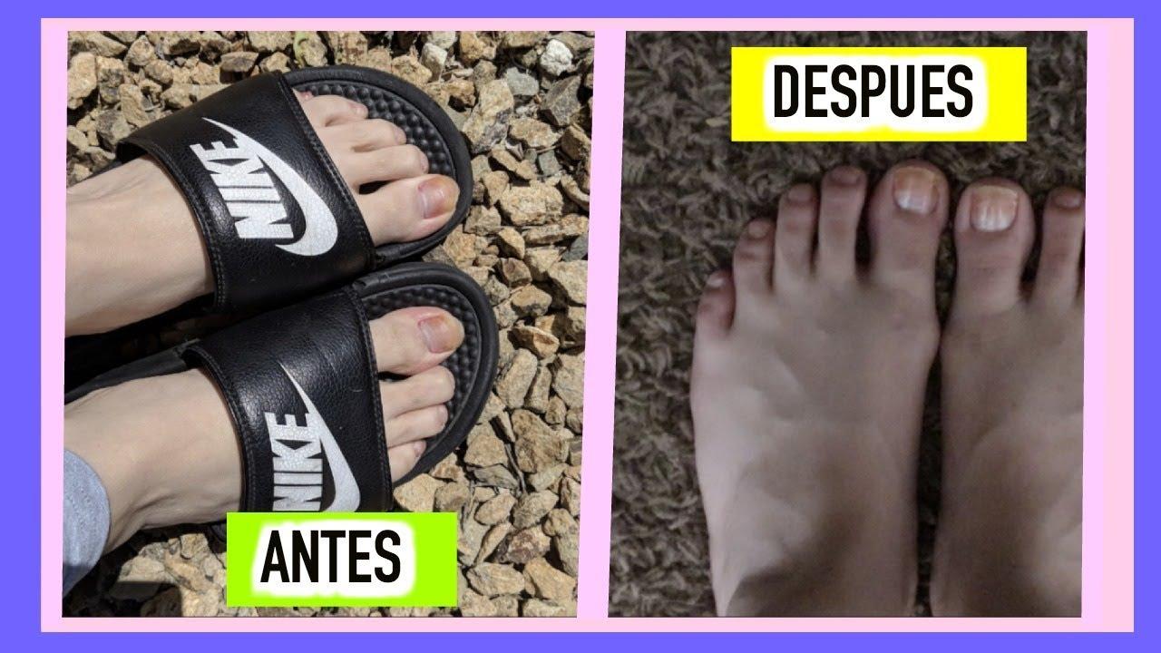 como eliminar manchas en las uñas delos pies