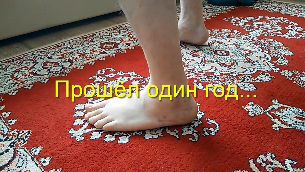 перелом ноги со смещением операция пластина последствия