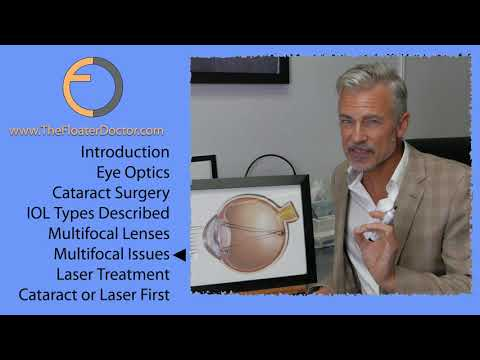 CATARACTS and VITREOUS EYE FLOATER TREATMENT