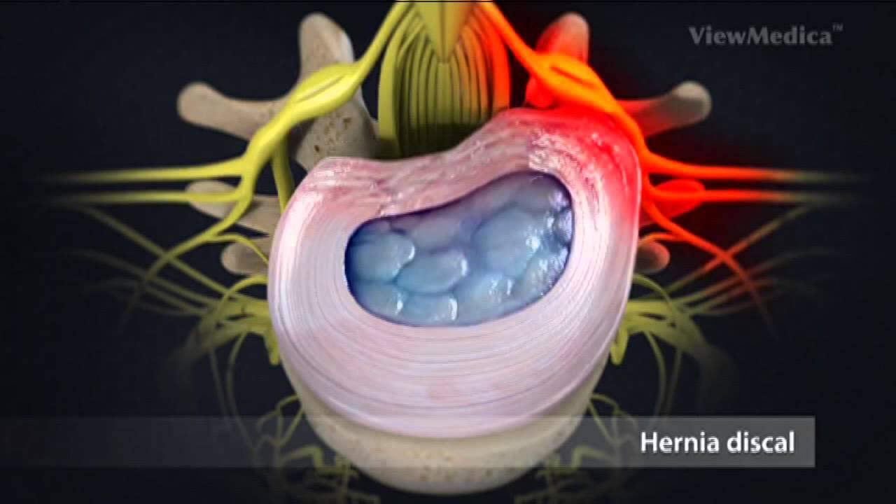 Hernie discale síntomas de diabetes