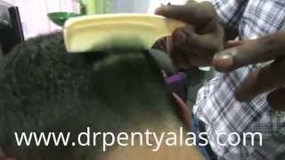 Hair Transplant Results in India Thumbnail