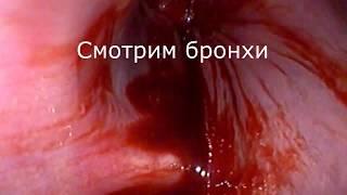Бронхи и желудок после отравления  Смотрим через эндоскоп