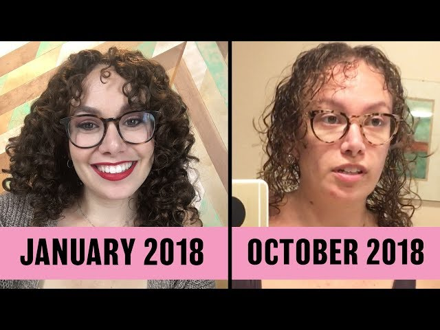 What It's Like To Lose Your Hair