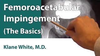 Femoroacetabular Impingement (The Basics)