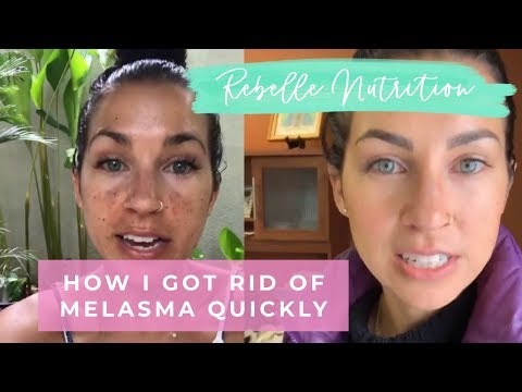 HOW I HEALED MY MELASMA/DARK SPOTS QUICKLY - REBELLE NUTRITION
