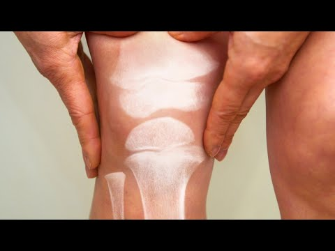 What A Pain: Special Shoes Can Help Arthritic Knees