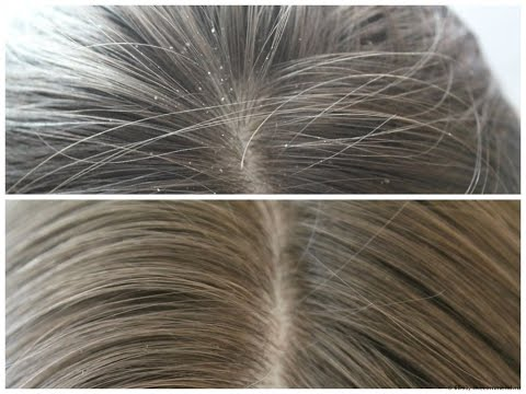 Паста сульсена для волос от перхоти. Мои отзывы.