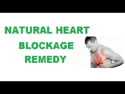 Heart Blockage Treatment Without Surgery Youtube