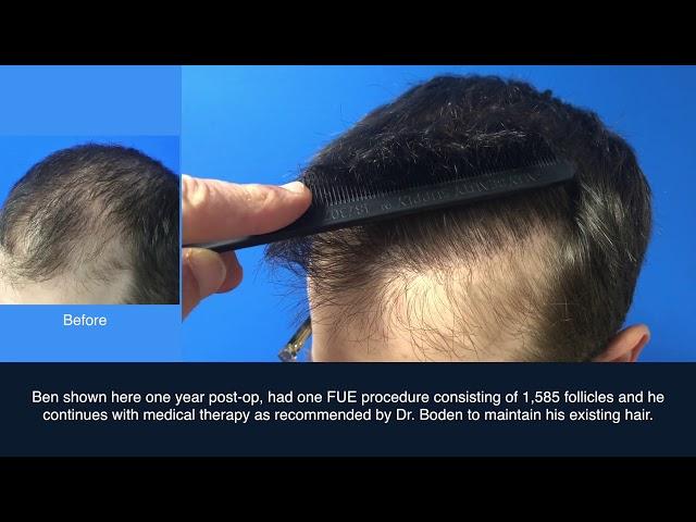 FUE Hair Transplant Case Study   Dr  Scott Boden
