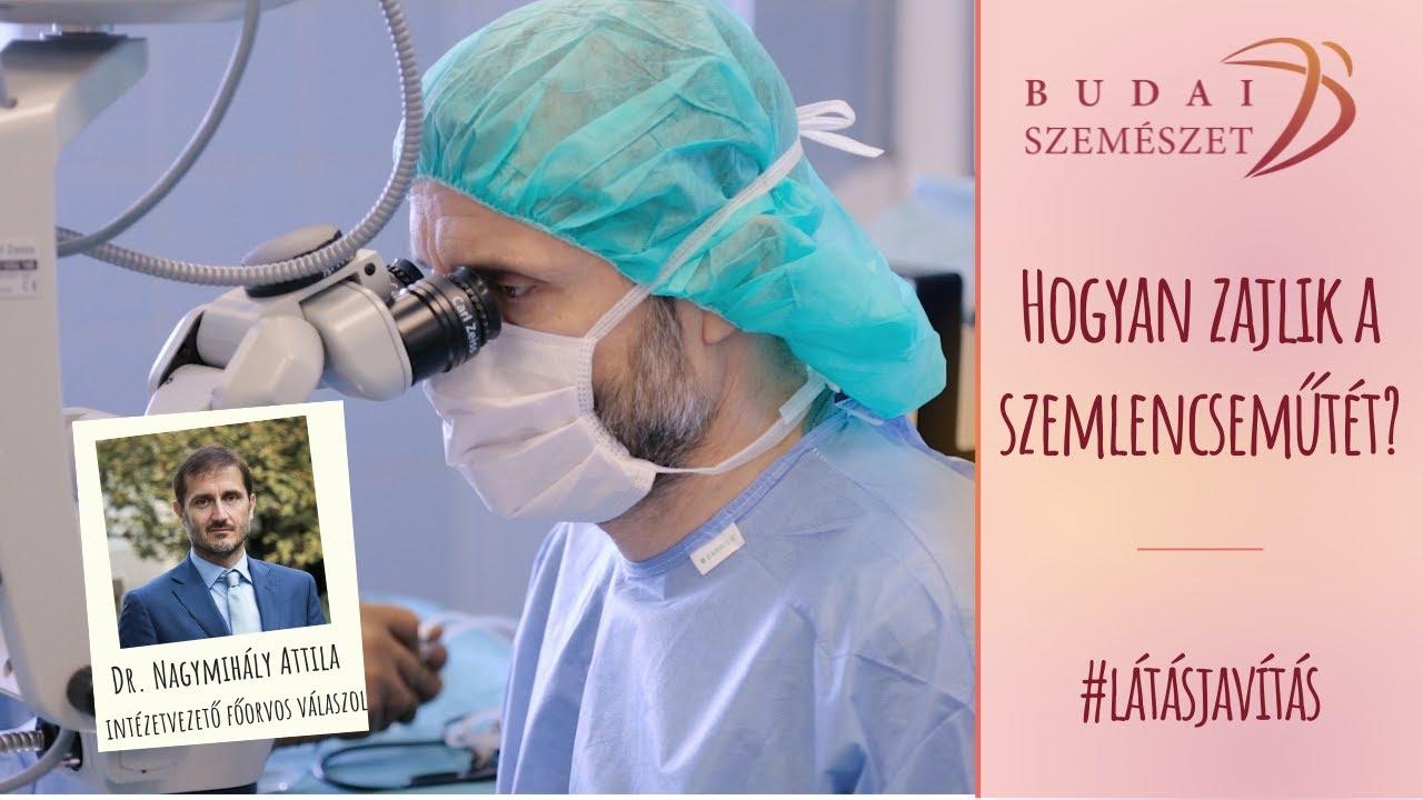 szürkehályog műtét utáni látásjavulás)
