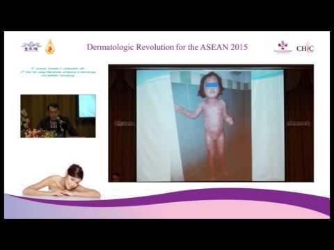 Psoriasis Future : Secret of Magnificent Medicine 1 of 2