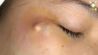 Cyst Removal On The Face Cystic Acne Treatment 211828!