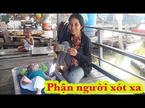 Trở lại thăm và trao quà Việt kiều cho bé cực dễ thương bị bệnh nặng ở xóm ghe nghèo