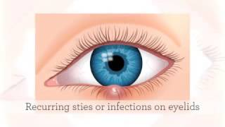 Pearle Vision-Roswell: Symptoms That Require An Appointment