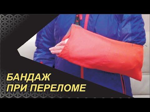 Перелом лучевой кости руки в типичном месте, виды, лечение