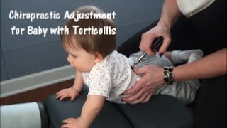 Download Video Chiropractic Adjustment for Baby with Torticollis MP3 3GP MP4