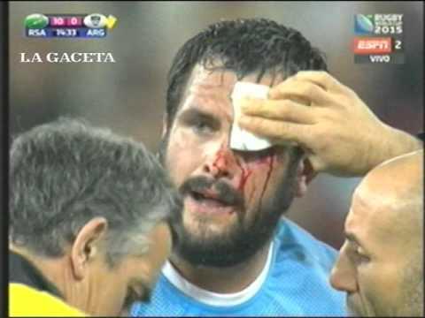 Mirá como jugó Figallo contra Sudáfrica.