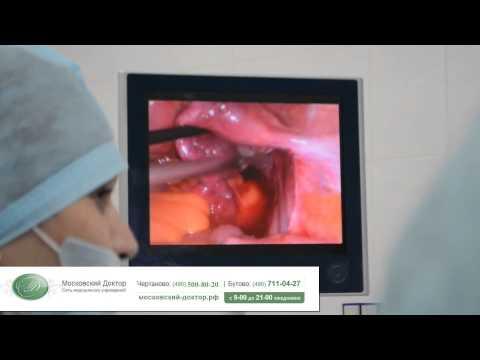 Как проверяют трубы на проходимость у женщин видео