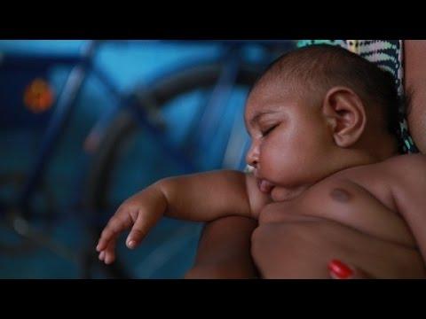 Zika virus linked to birth defect in newborns