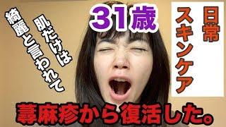 皆さんこんにちは。 松嶋初音です。 ここ数年蕁麻疹が顔面に出て、顔面地球儀のようになっていましたがかなり落ち着いてきたので最近のスキ...