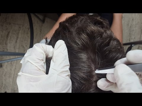 ASMR - REAL PERSON Scalp Check Up & Treatment *Trigger Sound