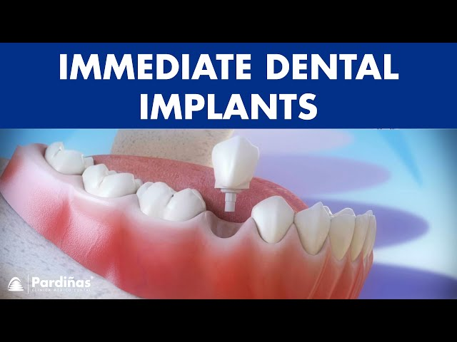 Immediate Dental Implants Post Extraction C Youtube