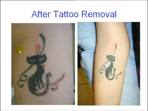 New tattoo removal youtube for How to remove a fresh tattoo