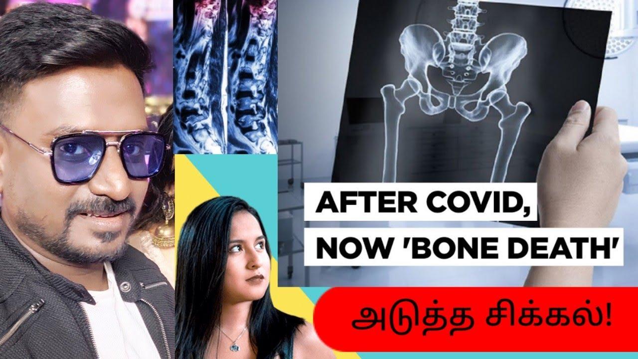 கொரோனா நோயாளிகளை குறிவைக்கும் Bone Disease   Rajmohan REPORT