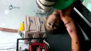 وكالة قاسيون  طفل مصاب جراء انفجار لغم أرضي في بلدة مضايا 7-12-2015