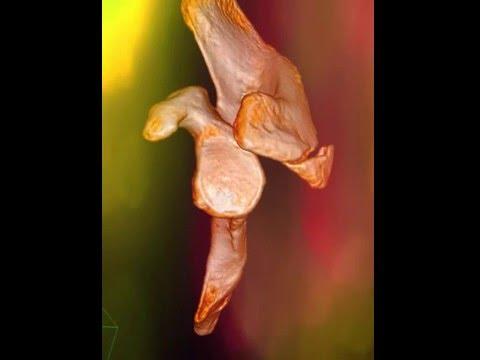 Shoulder Acromion fracture