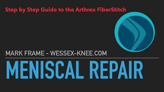 Arthrex All Suture FiberStitch Meniscal repair demo walthrough and surgical case example