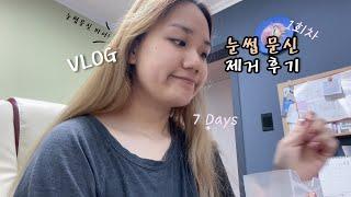 [Vlog] 눈썹문신 제거 1회차! 7일간의 변화 + …