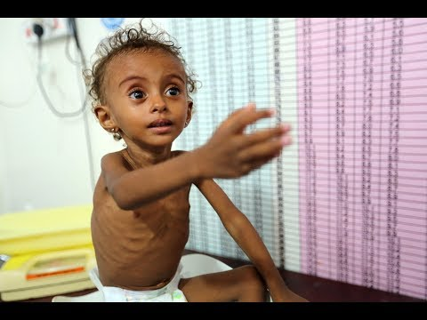 PBS NewsHour: Yemen's war must end to address starvation, UN food aid chief says
