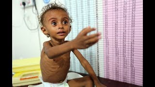 Yemen's war must end to address starvation, UN food aid chief says