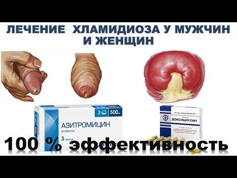 хламидиоз лечение