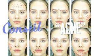 [CONSEIL] Comment comprendre son acné ?