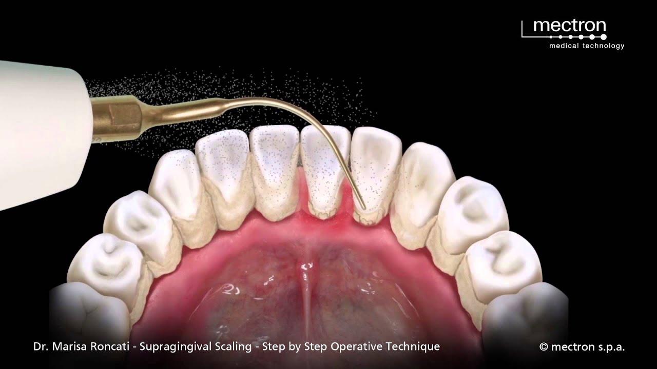 tandrensning med ultralyd