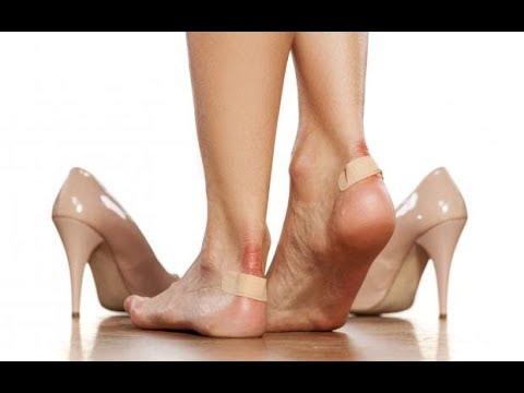 """Biết """"3 MẸO SIÊU ĐỘC NÀY"""" không sợ đau chân, phồng chân, chảy máu khi đi giày"""