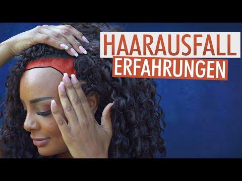 Haarausfall Frauen: Sie spricht über ihre hohe Stirn!