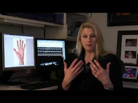 Hyperhidrosis Mayo Clinic