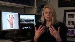 Hyperhidrosis - Mayo Clinic