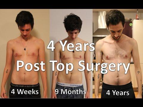 from Yadiel transgender post surgery transition photos