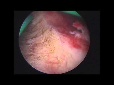 Hysteroskopische Endometriumablation - Endometrial ablation