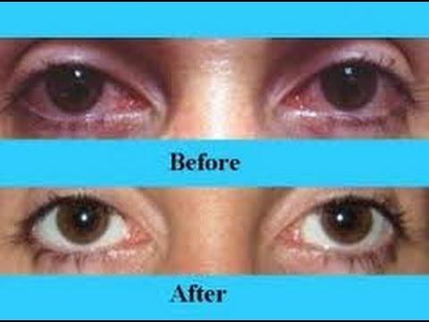 Natural Bloodshot Eyes Treatment