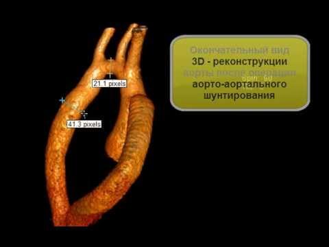 Коарктация аорты: виды, причины, симптомы, диагностика